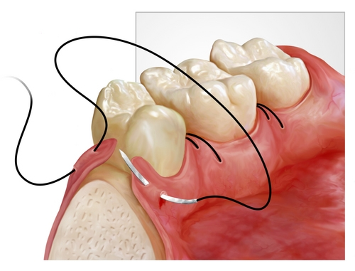 chirurgia oro-dentara