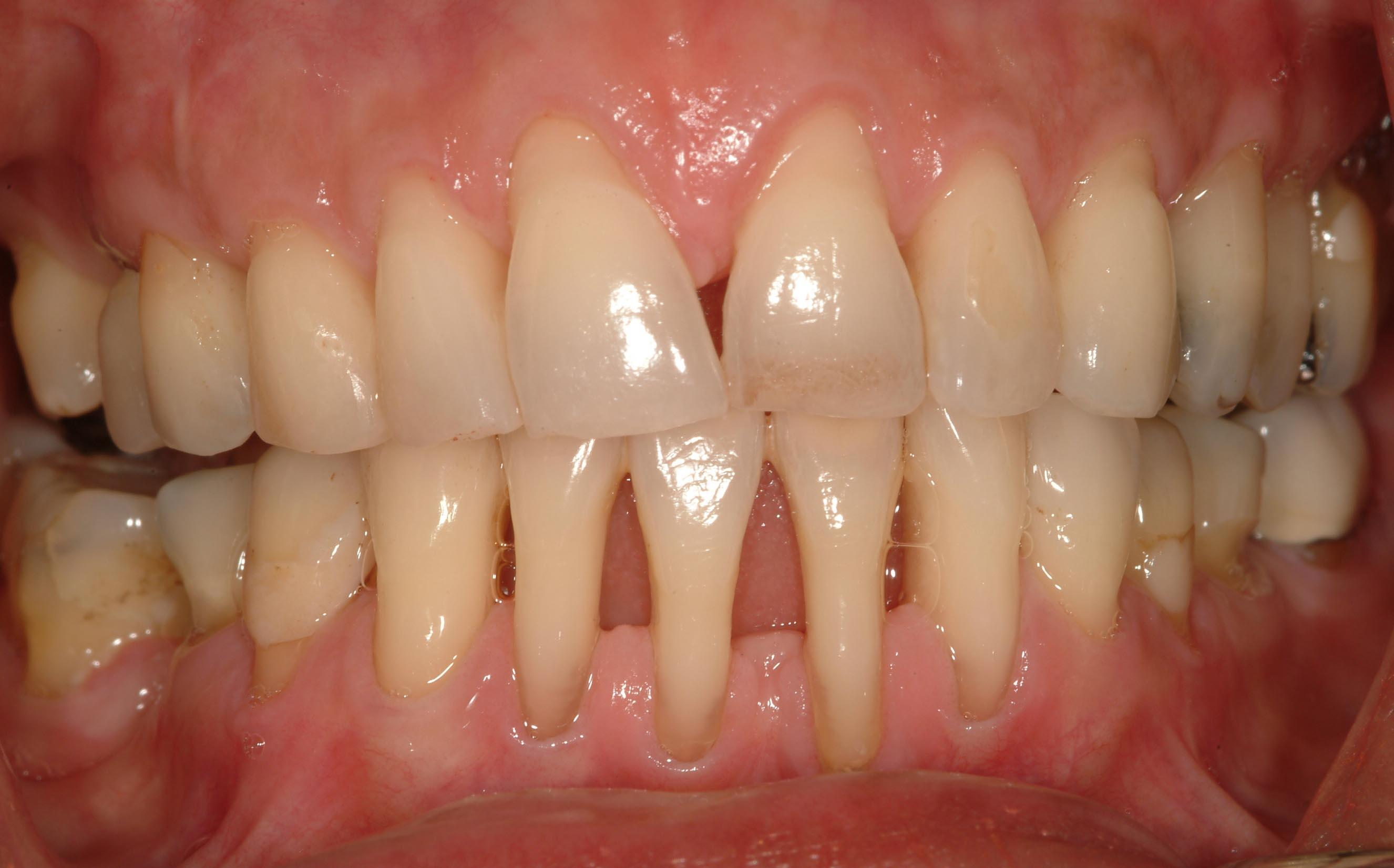STOP parodontozei