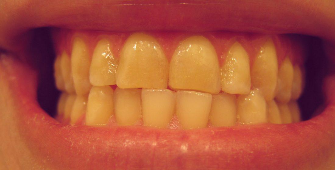 Bruxismul: scrasniti din dinti noaptea?