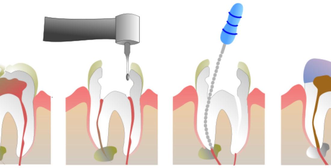Tratamentul canalului radicular