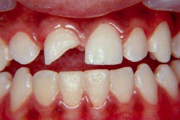 traumatism sau dislocare a dentitiei