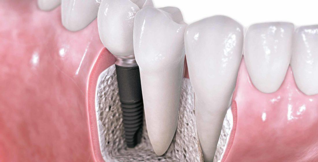 Implantologia-posibilitatea unei a III-a dentitii