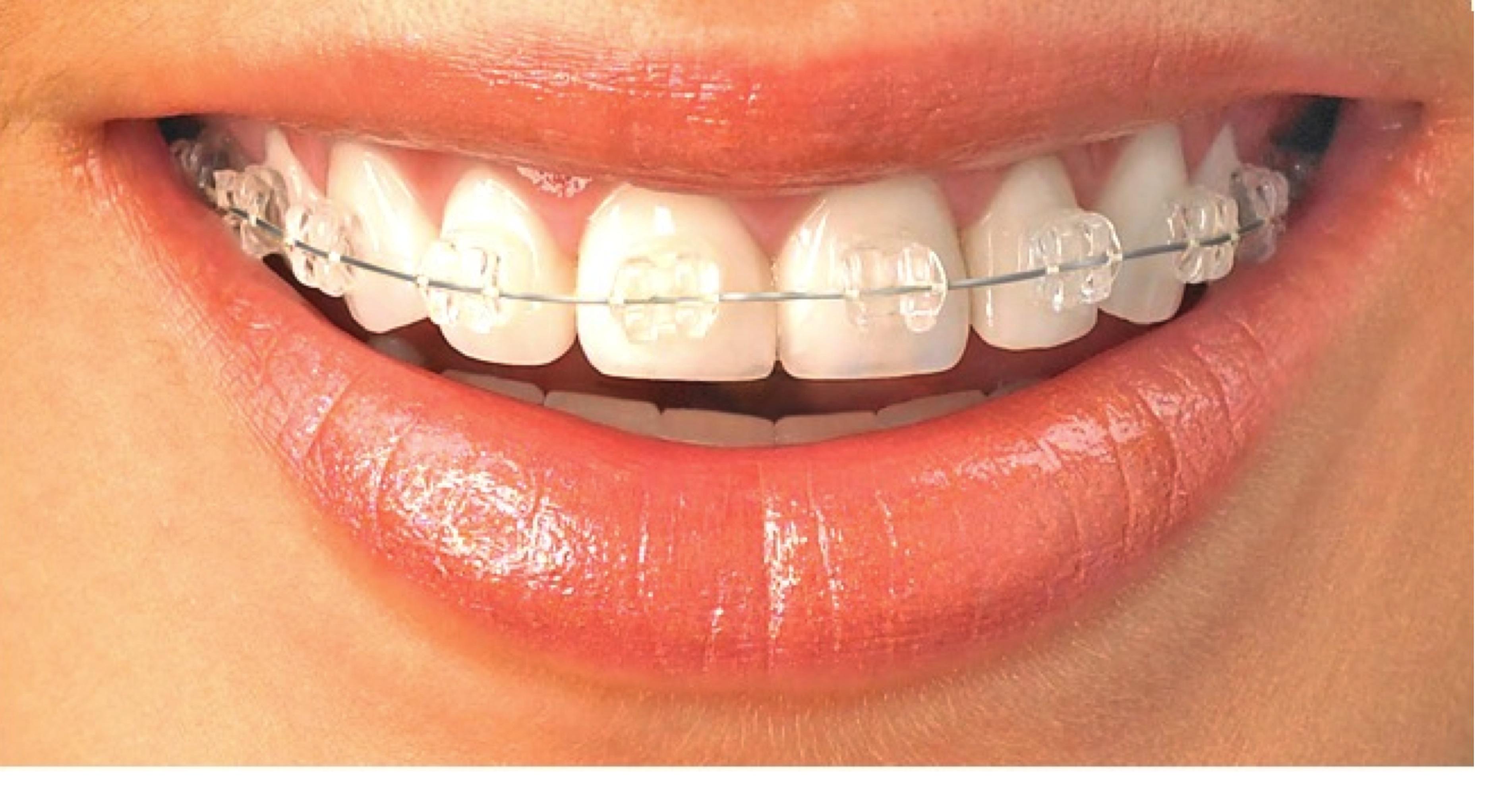 Ortodontia - indreptarea si corectarea pozitiei dintilor