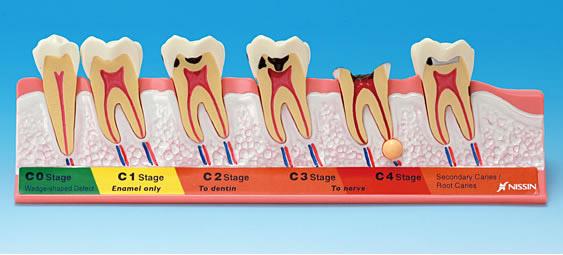 Caria dentara