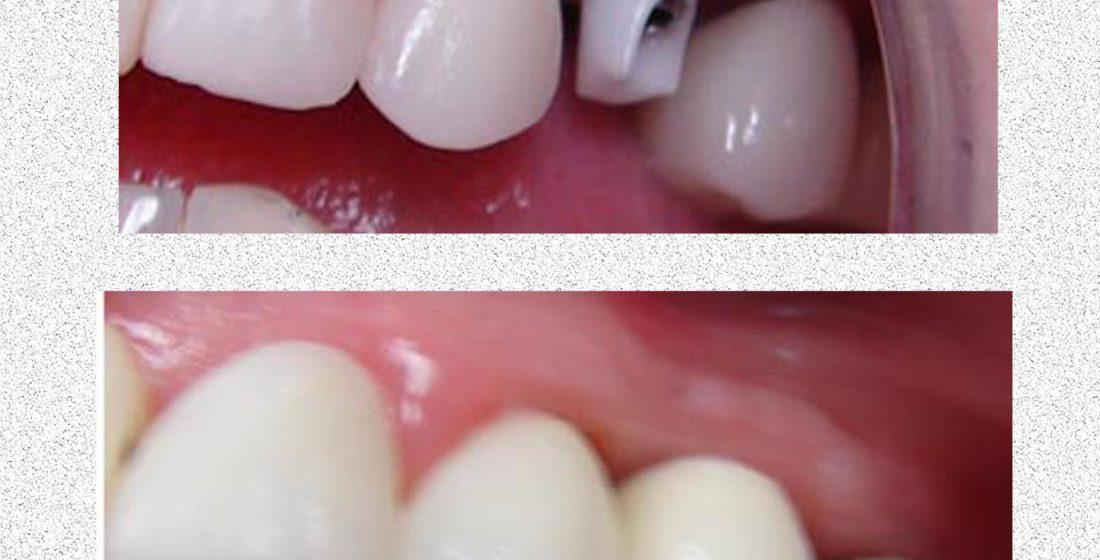 O alternativa pentru implantul dentar clasic