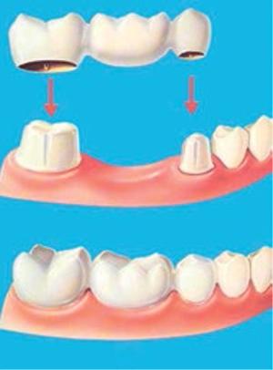 puntea-dentara
