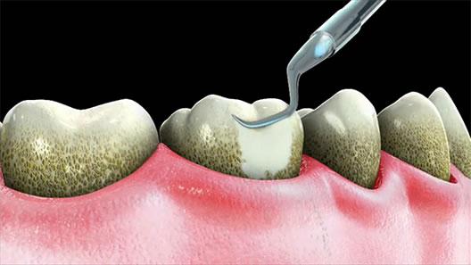 Curatare dinti