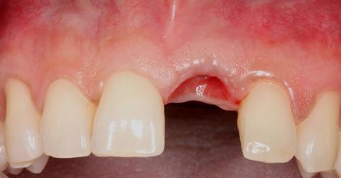 Insertia implantului imediat dupa extractia dentara