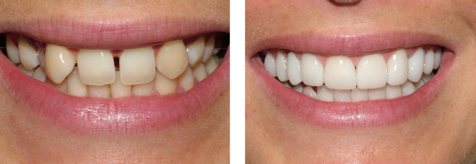 Corectare dinti frontali cu fatete dentare