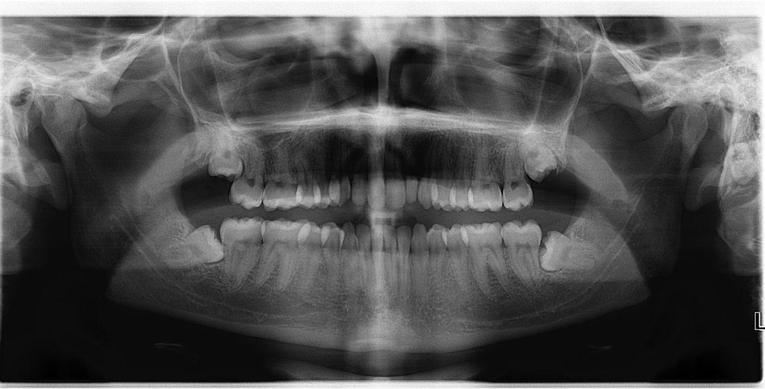 Implicatiile molarului de minte asupra sanatatii orale