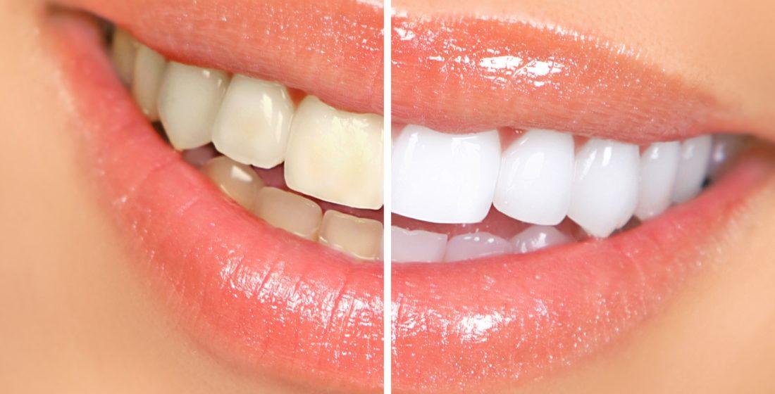 Albirea dentara