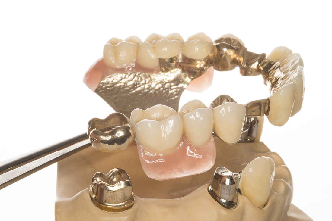 Importanta pastrarii integritatii arcadelor dentare