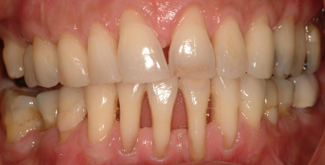 Va confruntati cu parodontita? Iata cum va afecteaza viata si cum ii puteti preveni aparitia