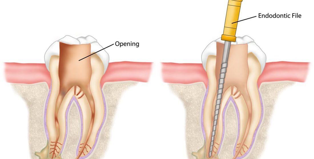 Durerea in tratamentul endodontic