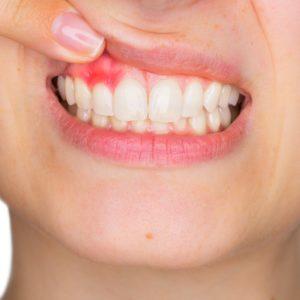 Optiuni de tratament pentru abces dentar