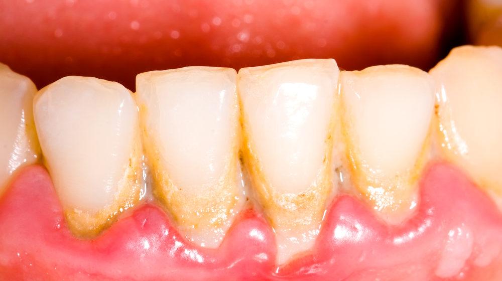 Influeiența plăcii bacteriene asupra dinților și gingiilor