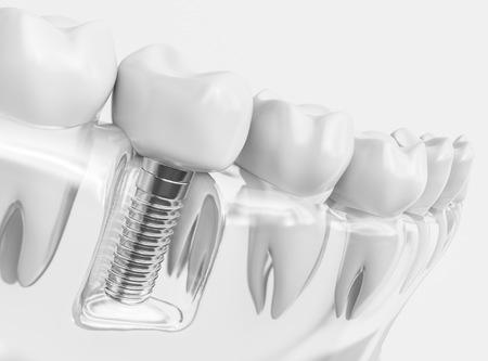 Avantajele implantului dentar