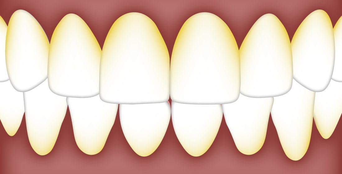 Placa bacteriana – influenta ei asupra dintilor si gingiilor
